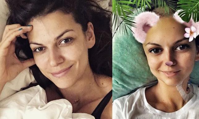 Alżbeta Lenska przeszła operację mózgu: Coś strzeliło w głowie, nie mogłam oddychać, wyłam z bólu