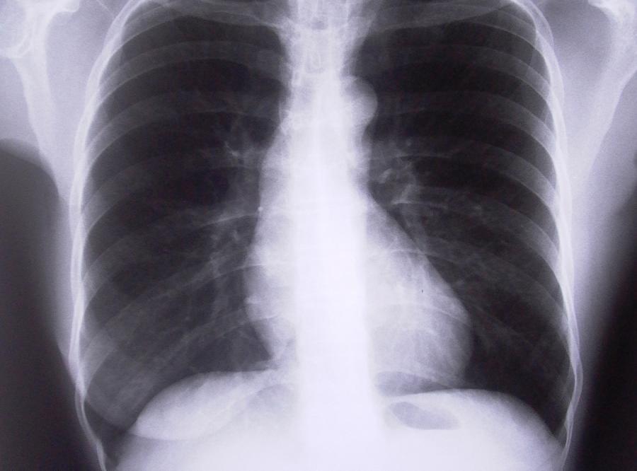 Polaków zabija rak płuc