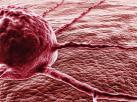 Wirus opryszczki pokona raka? Obiecujące wyniki badań