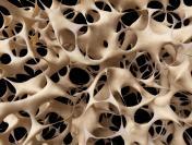 Osteoporoza - cichy złodziej kości. Zagraża 8 mln Polaków