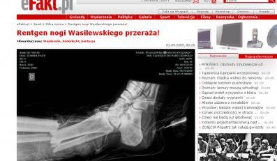 Rentgen nogi Wasilewskiego przeraża!