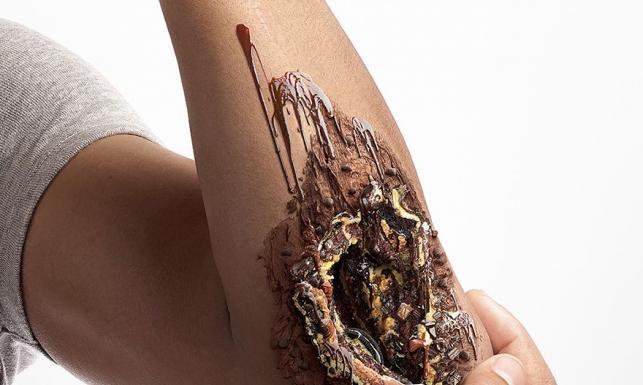 Szokujące ZDJĘCIA. Rany zrobione ze... słodyczy. Kampania przeciwko cukrzycy trafia do wyobraźni